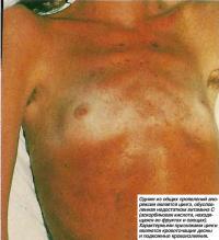 Одним из общих проявлений анорексии является цинга
