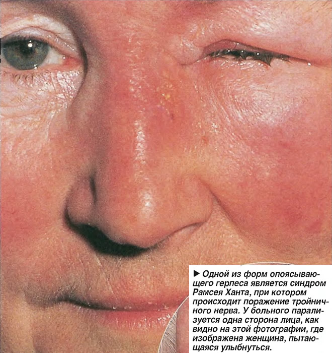 Одной из форм опоясывающего герпеса является синдром Рамсея Ханта
