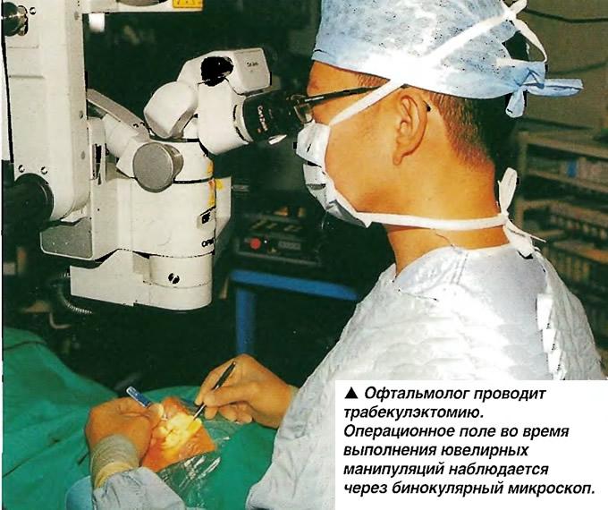 Офтальмолог проводит трабекулэктомию