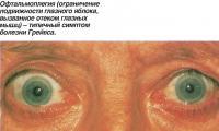 Офтальмоплегия (ограничение подвижности глазного яблока)