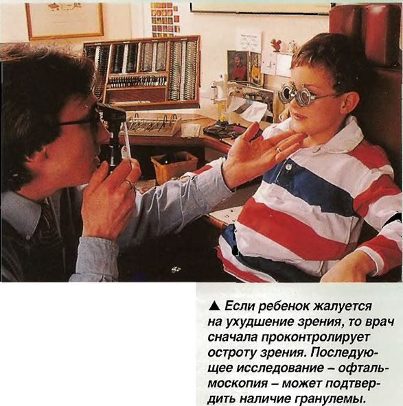 Офтальмоскопия - может подтвердить наличие гранулемы