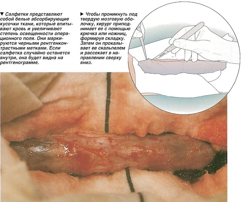 Ограничение операционного поля салфетками