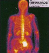 Окрашенные гамма-камерой снимки (сцинтиграммы) показывают зоны опухолей