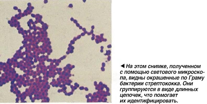 Окрашенные по Гоаму бактерии стрептококка