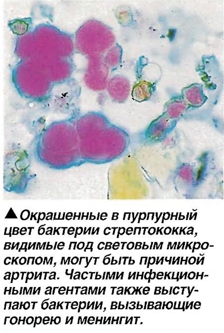 Окрашенные в пурпурный цвет бактерии стрептококка