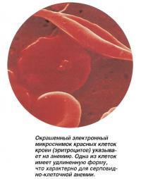 Окрашенный микроснимок красных клеток крови указывает на анемию