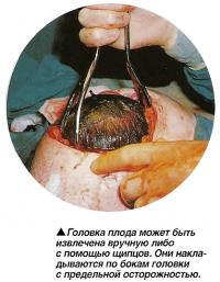 оловка плода может быть извлечена вручную либо с помощью щипцов