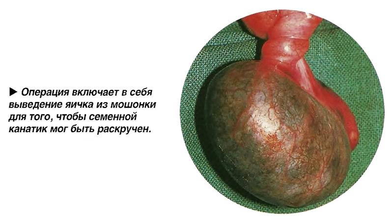 Операция включает в себя выведение яичка из мошонки