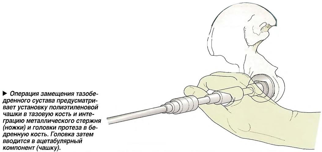 Операция замещения тазобедренного сустава предусматривает установку полиэтиленовой чашки