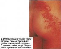 Опоясывающий лишай часто является первым признаком слабости иммунной системы.