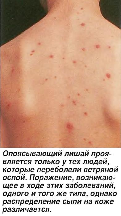Опоясывающий лишай - симптомы, диагноз и лечение (Болезни - Инфекционные болезни) - Medsest.ru