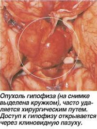 Опухоль гипофиза часто удаляется хирургическим путем