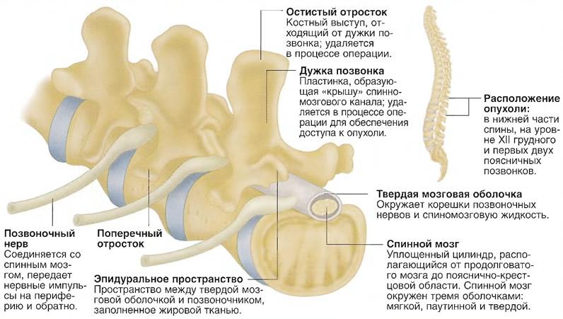 Опухоли позвоночника и спинного мозга