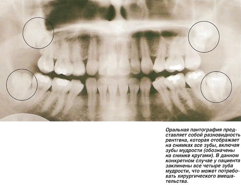 Оральная пантография представляет собой разновидность рентгена