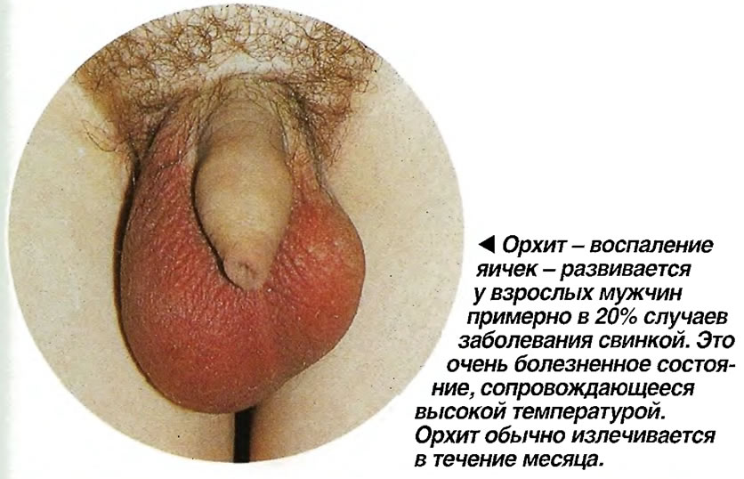 Орхит - воспаление яичек - развивается у взрослых мужчин примерно в 20% случаев заболевания свинкой