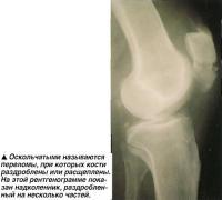 Оскольчатыми называются переломы, при которых кости раздроблены или расщеплены