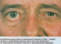 Ослабление мышц лица на пораженной стороне