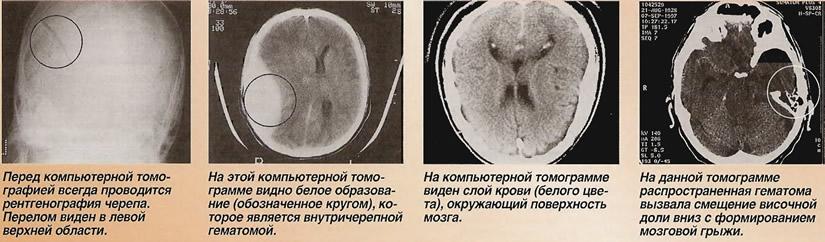 Осложнения травм головы, требующие краниотомии