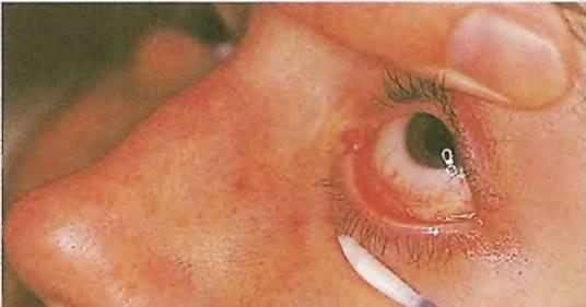 Осмотр глаза для обнаружения чужеродного тела