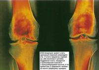 Остеоартрит может стать причиной тяжелой инвалидности