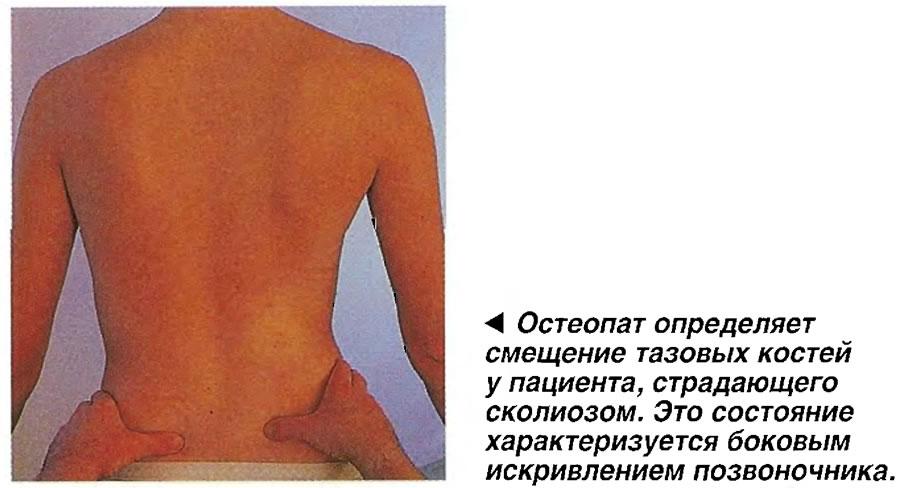 Остеопат определяет смещение тазовых костей у пациента