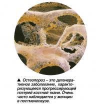 Остеопороз - это дегенеративное заболевание потери костной ткани