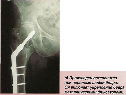 Остеосинтез при переломе шейки бедра