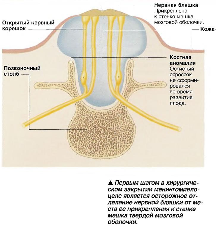 Осторожное отделение нервной бляшки от места прикрепления к стенке мешка твердой мозговой оболочки