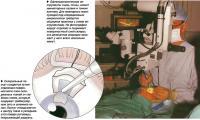 Отделение склерального лоскута