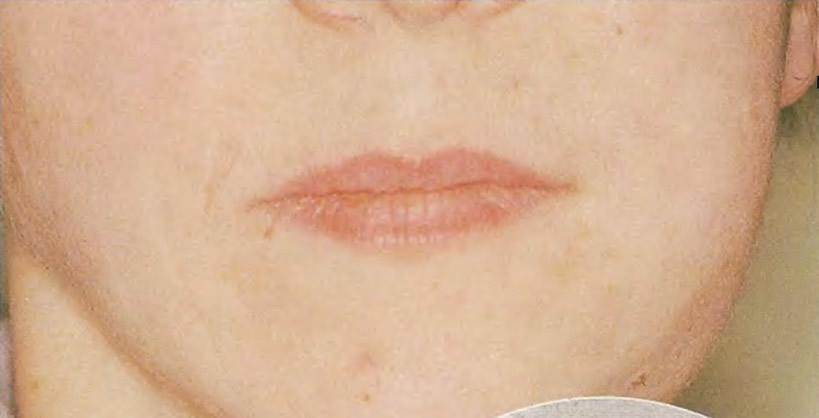 Отек в нижней задней части левой щеки вследствие воспаления