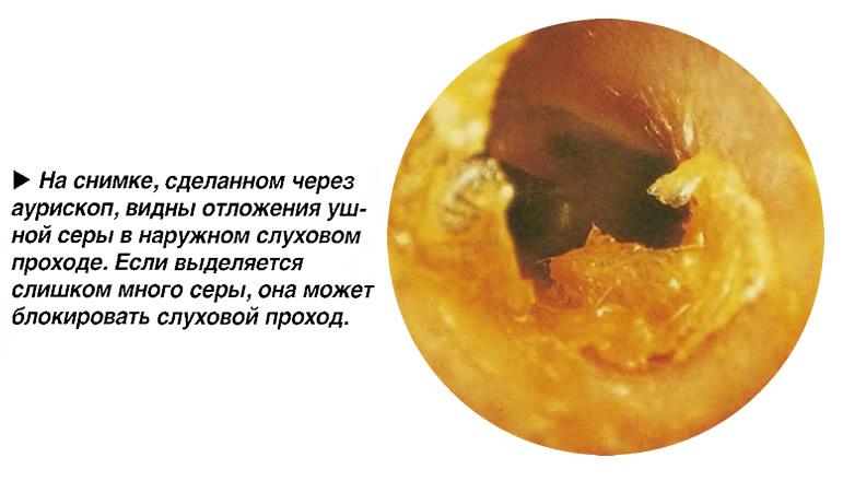 Отложения ушной серы в наружном слуховом проходе