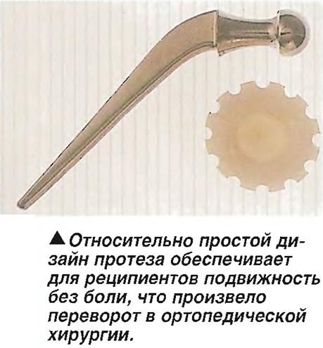 Относительно простой дизайн протеза обеспечивает подвижность без боли