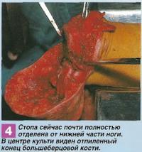 Отпиленный конец большеберцовой кости