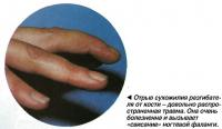 Отрыв сухожилия разгибателя от кости - довольно распространенная травма