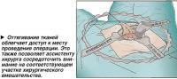 Оттягивание тканей облегчает доступ к месту проведения операции