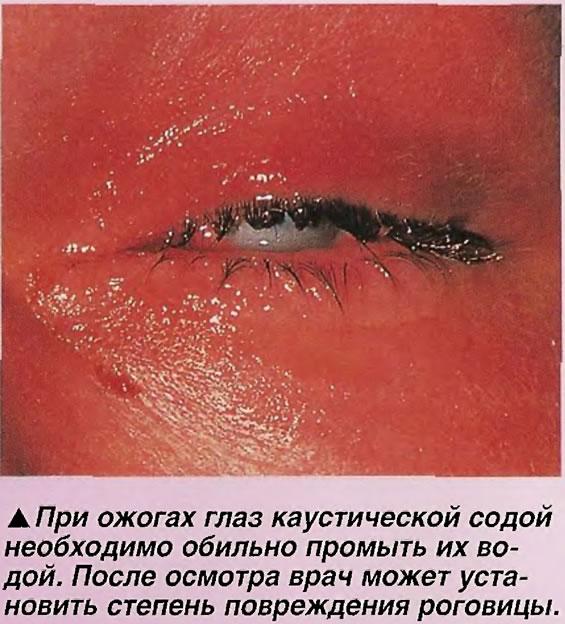 Ожог глаз каустической содой