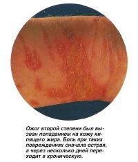 Ожог второй степени был вызван попаданием на кожу кипящего жира