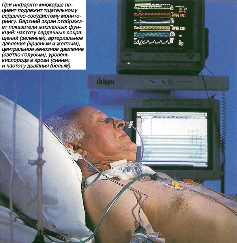 Пациент подлежит тщательному сердечно-сосудистому мониторингу