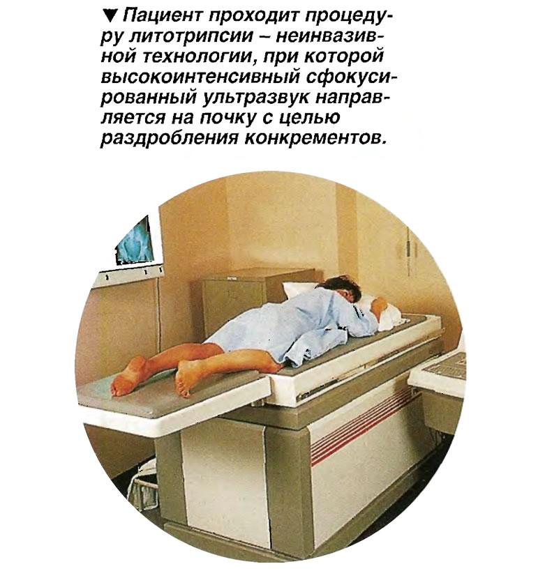 Пациент проходит процедуру литотрипсии
