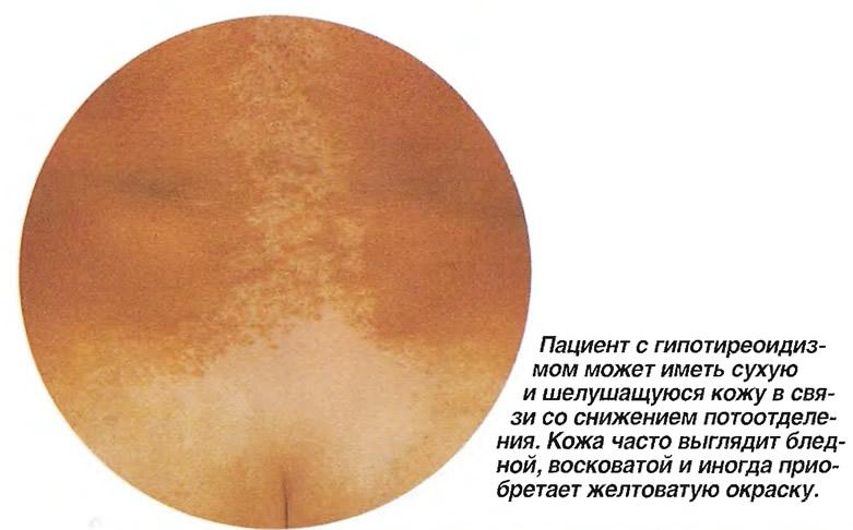 Пациент с гипотиреоидизмом может иметь сухую и шелушащуюся кожу