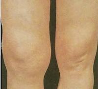Пациент с инфектартритом, страдающий тяжелой формой разрушения коленных суставов