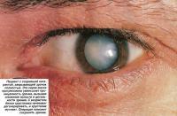 Пациент с созревшей катарактой, закрывающей зрачок полностью