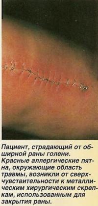 Пациент, страдающий от обширной раны голени