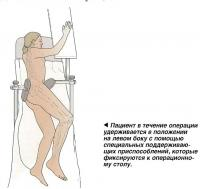 Пациент в течение операции удерживается в положении на левом боку