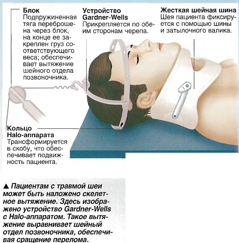 Пациентам с травмой шеи может быть наложено скелетное вытяжение