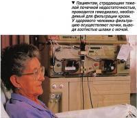 Пациентам, страдающим тяжелой почечной недостаточностью, проводится гемодиализ