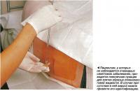 Пациентам, у которых не наблюдается очевидных симптомов заболевания, проводится поясничная пункция