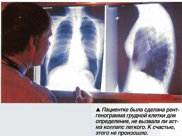 Пациентке была сделана рентгенограмма грудной клетки