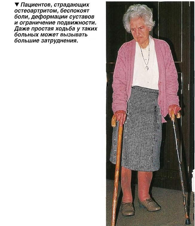 Пациентов, страдающих остеоартритом, беспокоят боли, деформации суставов и ограничение подвижности