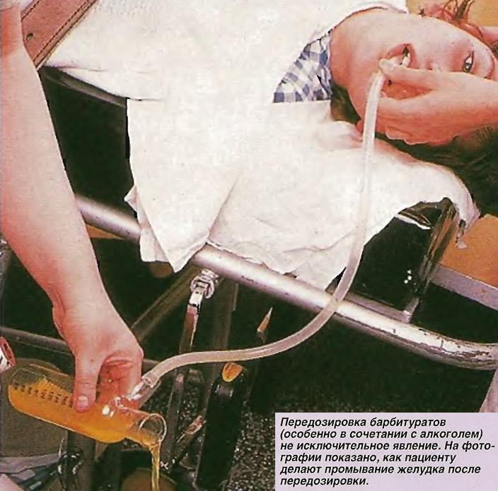 Пациенту делают промывание желудка после передозировки